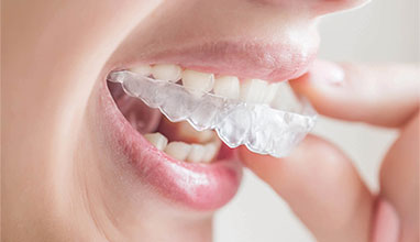 Confidence Boost: The Positive Impact of Invisalign On Aspiring Models
