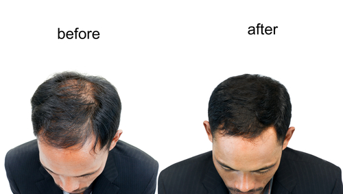 getting a hair transplant in Turkey
