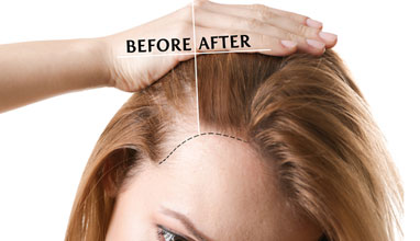 Advantages Of Getting Hair Transplant In Turkey