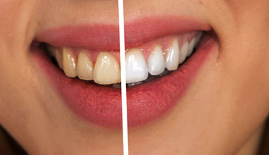 Teeth Whitening and Invisalign - Gaining Self-Esteem through Cosmetic Dentistry